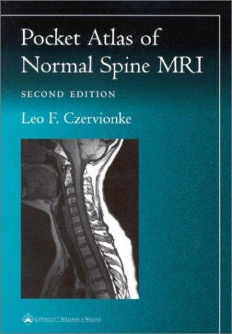 Pocket Atlas of Spinal MRI (Radiology Pocket Atlas Series) by Leo F. Czervionke